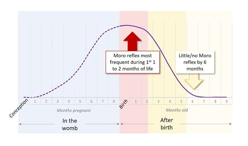 Moro reflex frequency by age chart
